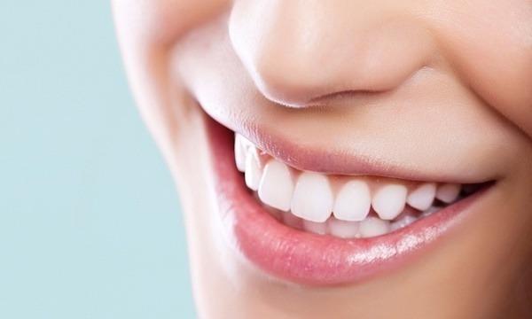 Tanden bleken Assen